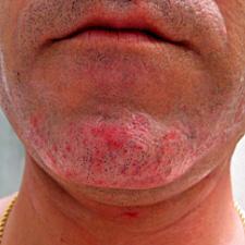 Foliculitis de la barba 2