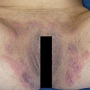 No me he afeitado la zona púbica 4