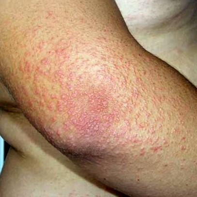 La cosmetología del acné