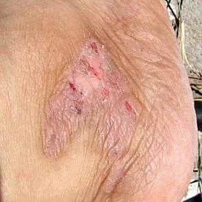 El ácido bórico al hongo de las uñas en las manos