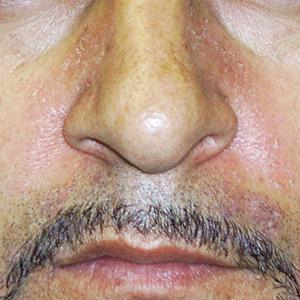 Eczema seborreico