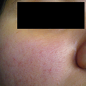 Rosácea seborreica facial