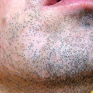 Mancha calva en la barba y manchas blancas en el pene pueden estar relacionadas - Manchas blancas en la pared ...