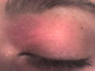 Blefaritis atópica