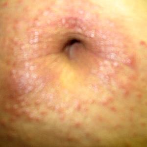 Piel seca flakey en la cabeza del pene