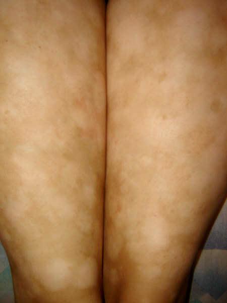 Manchas blancas dermatitis atopica