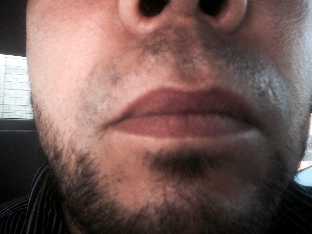 del vello facial