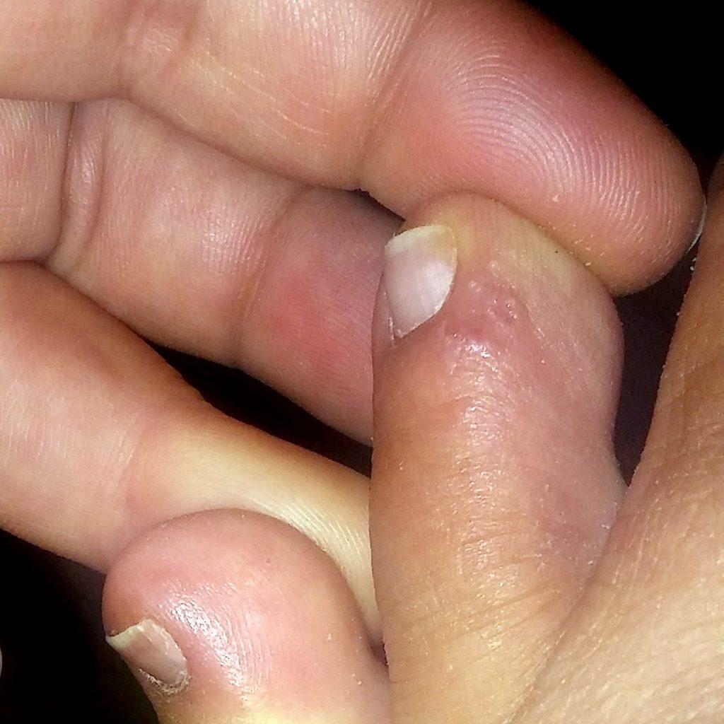 Como librarse del hongo de los pie