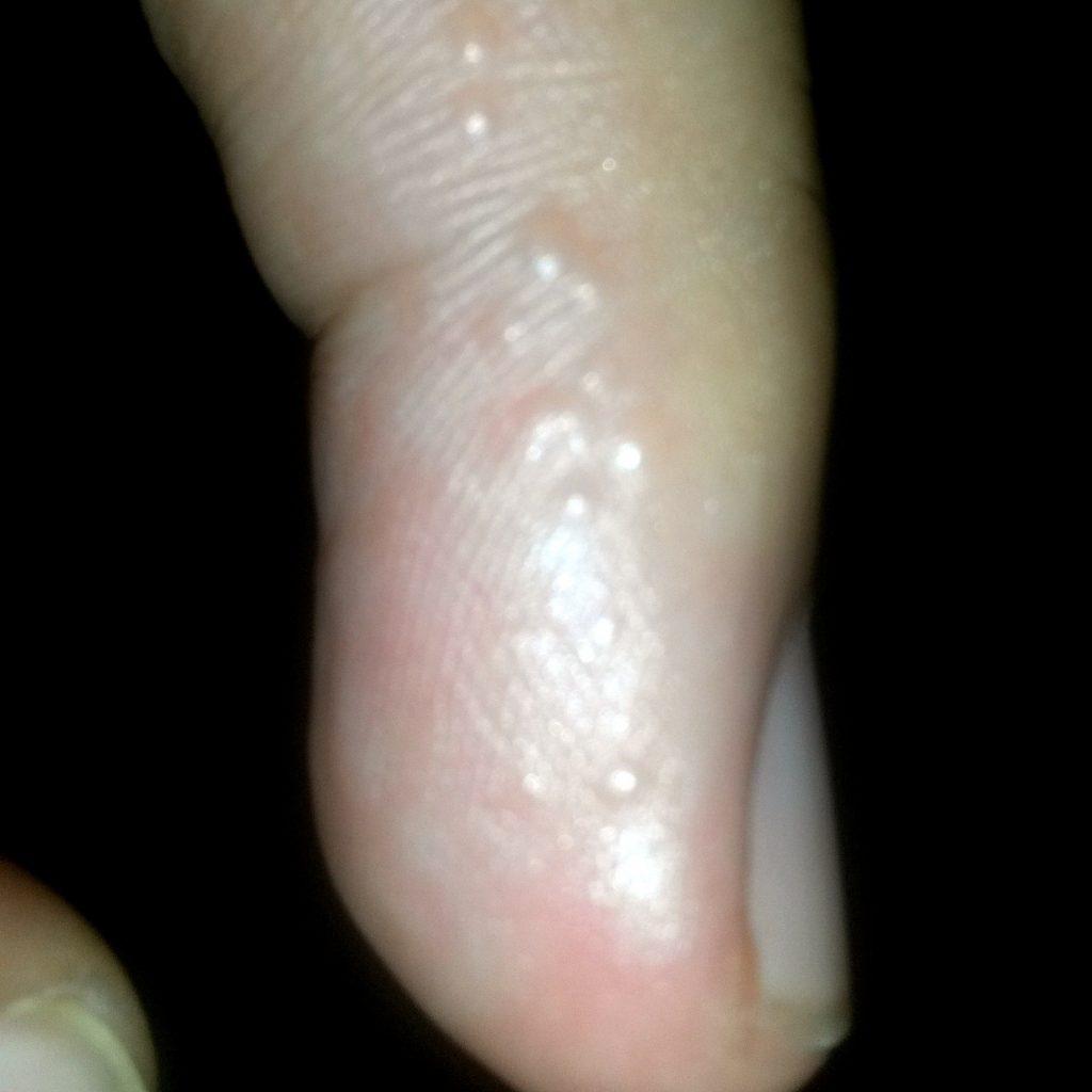 Atopichesky la dermatitis sobre las alas de la nariz
