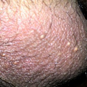 La piel librarse de las huellas de los granos sobre la persona