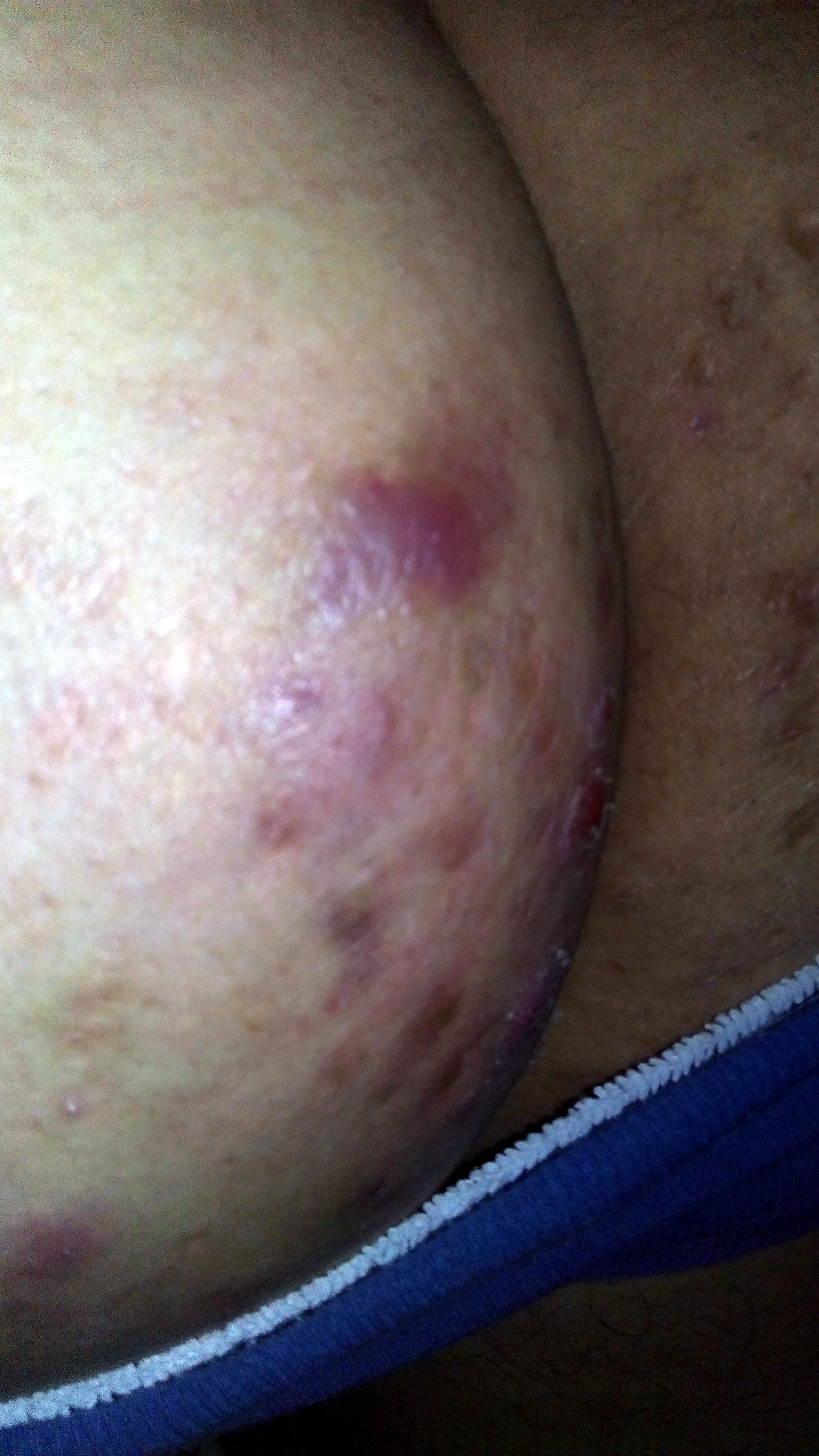 El tratamiento del picor a la psoriasis
