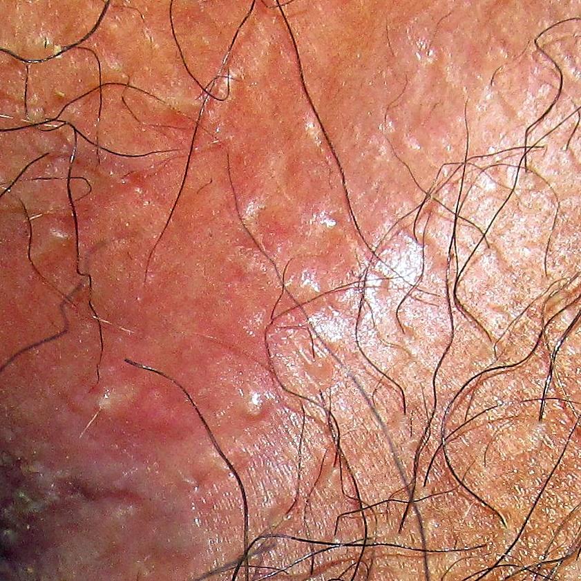 Irritaci 243 N Y Dolor En La Zona Del Ano Dermatologo Net