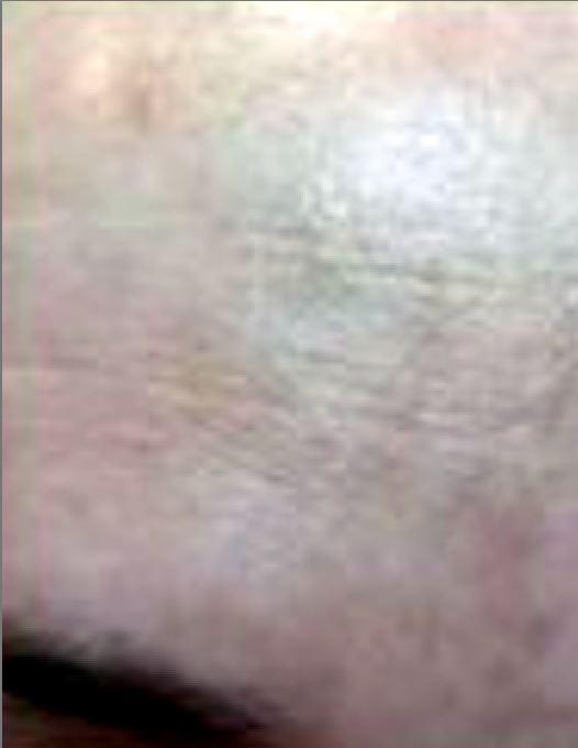 Las manchas de pigmento sobre la superficie de la piel