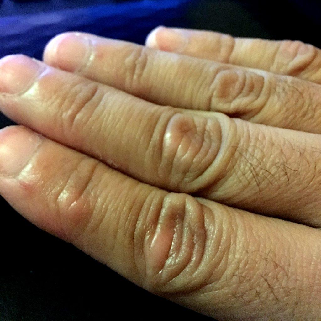 Los preparados de los hongos de los pies