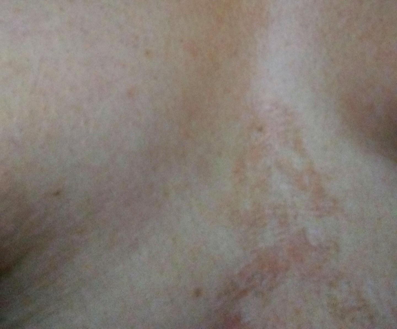 El ungüento de la grasa de lubricación y la celidonia mayor de la psoriasis