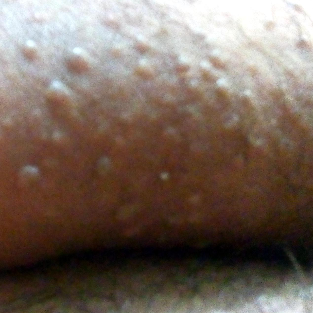 images of molluscum contagiosum #10