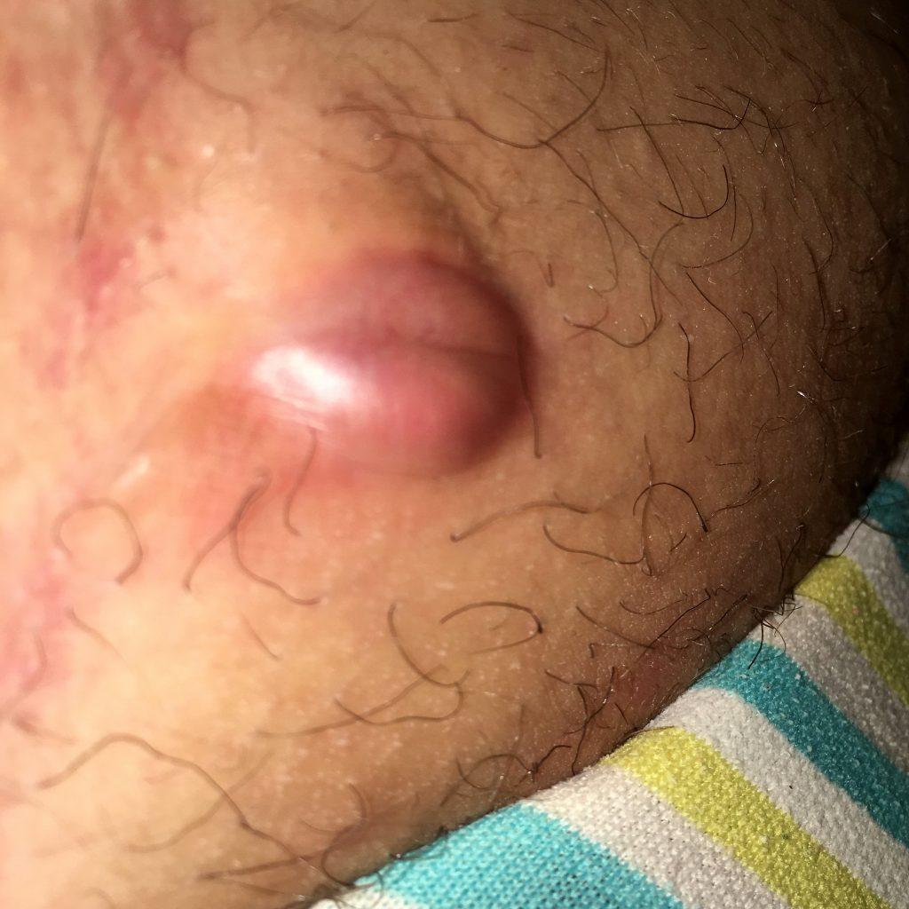 De por varikoza se paraliza el pie