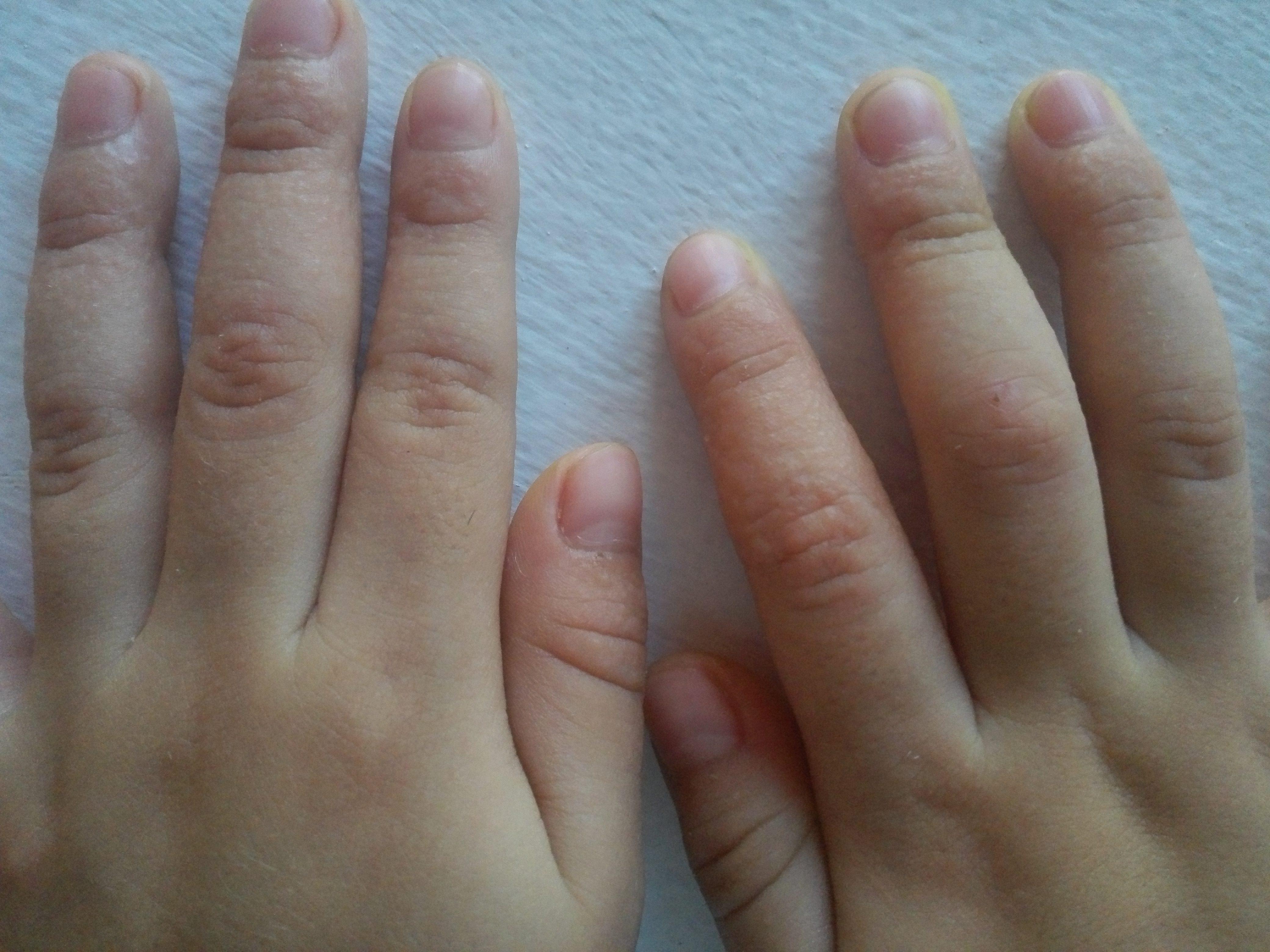 Dela granos pican los mano que dedos en