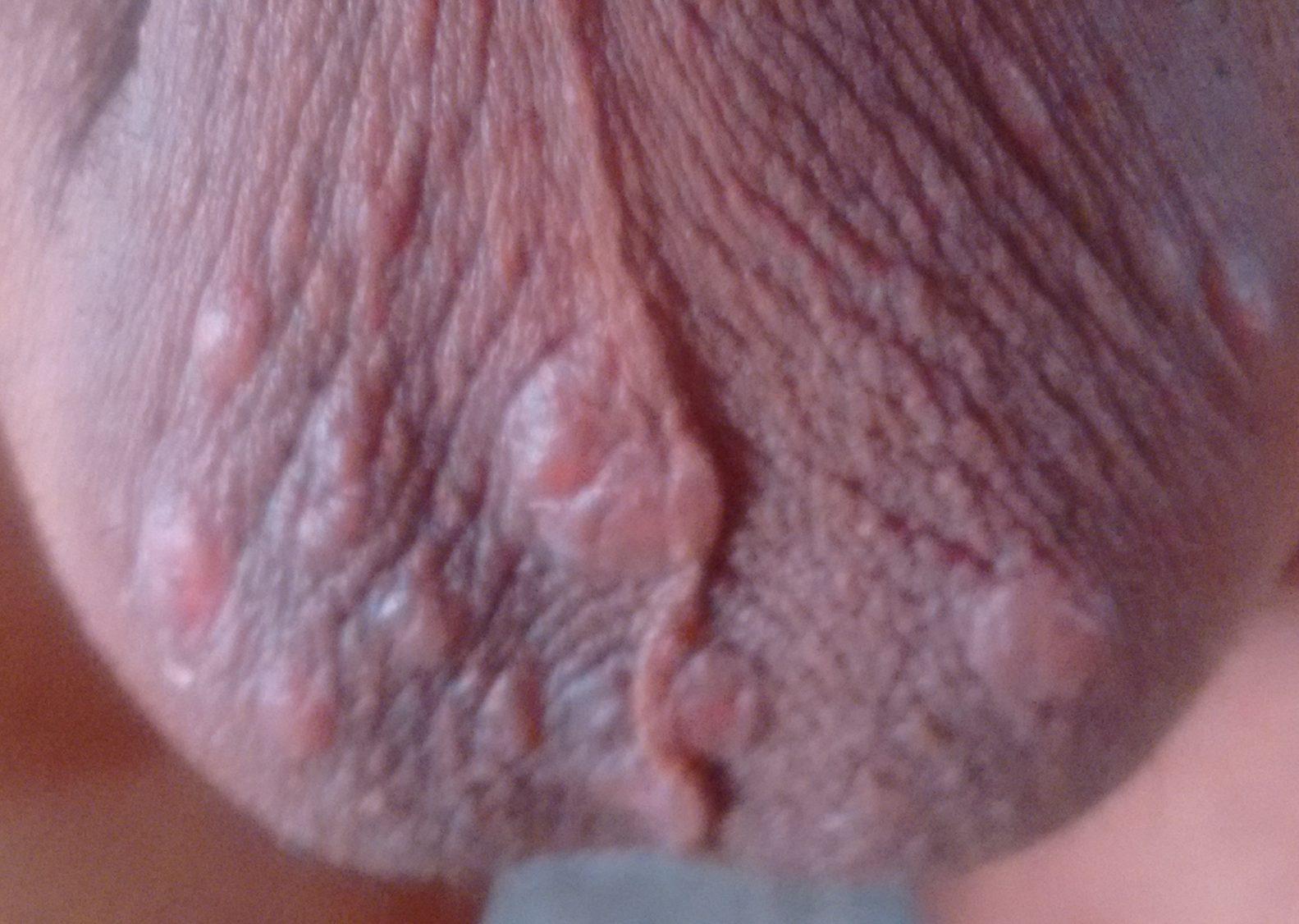 Anal al picor del escroto