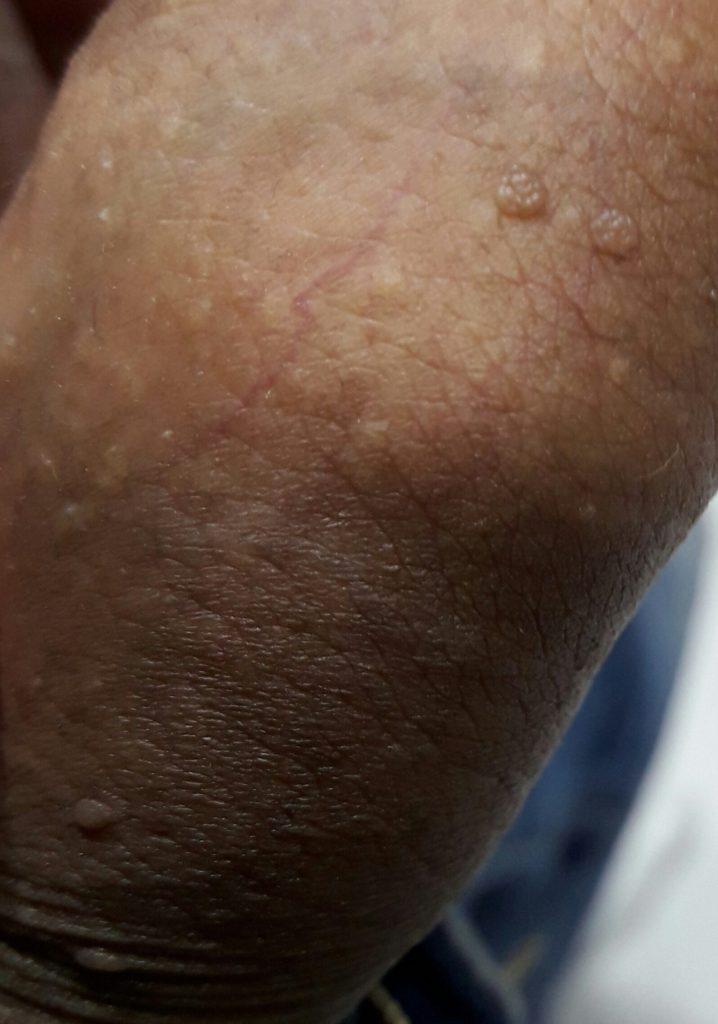El picor y el ardor de las erupciones en la piel Salud