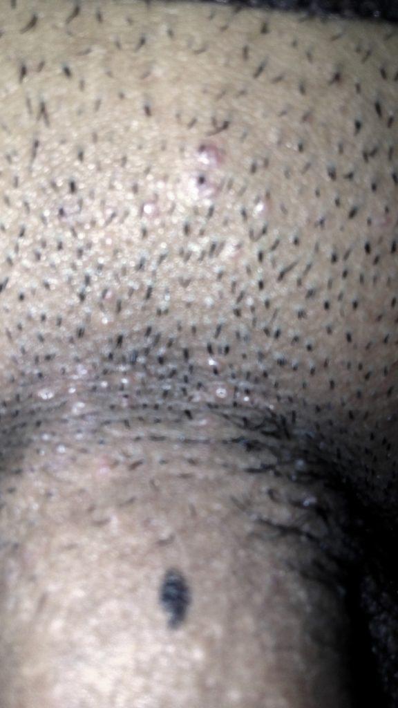 Me salen granitos en los genitales que no molestan.. – dermatologo.net