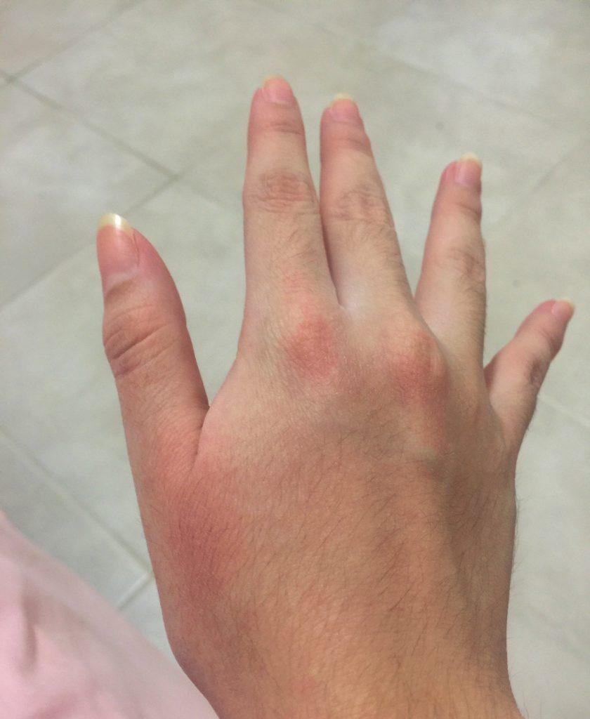 que son las manchas rojas en las manos