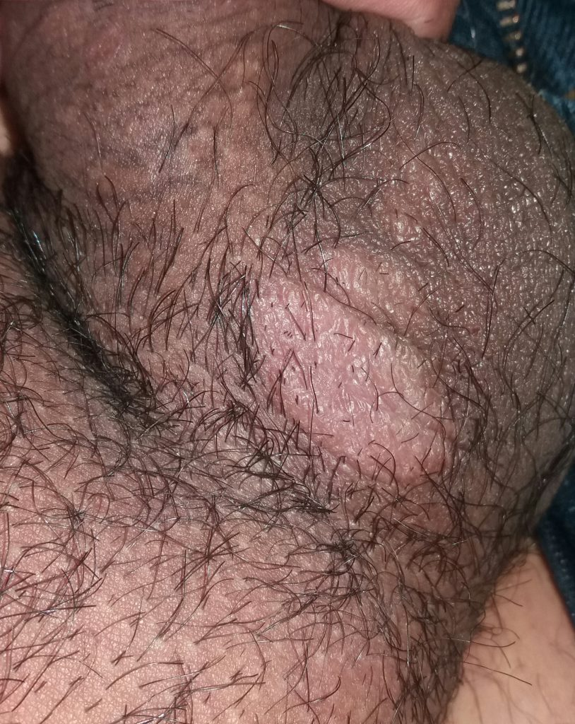 Fotos testiculos granos los en