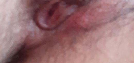 Abceso doloroso en labio vaginal