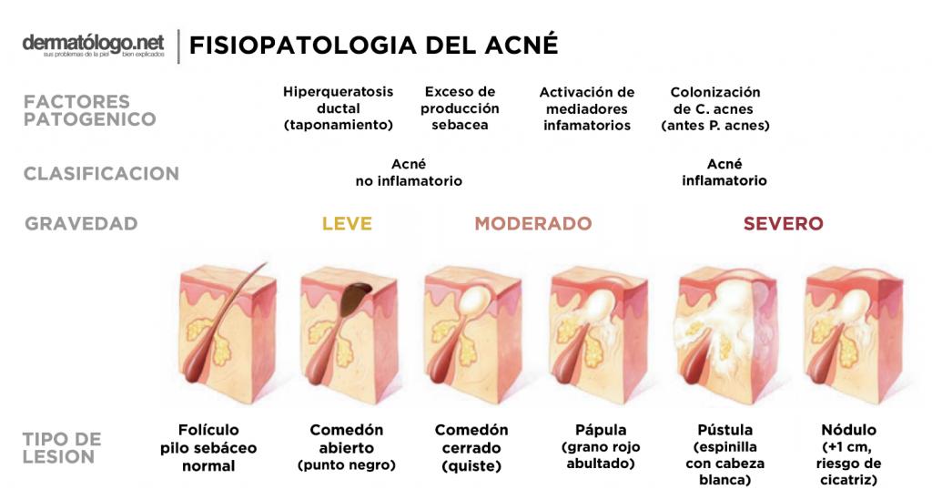 Fisiopatololgía del Acné